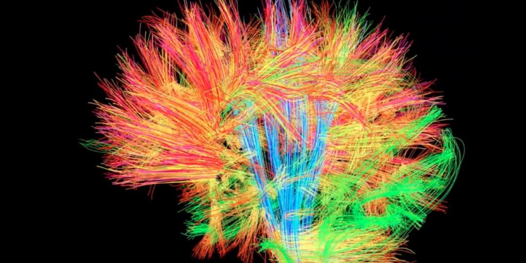 cérebro-delete-memória-lembrança